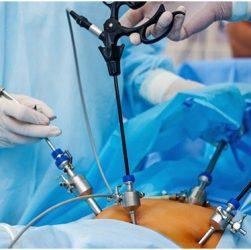 laparoscopic weight loss surgery