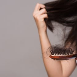 Female Hair Loss Problems - 5 Things Every Women Must Know